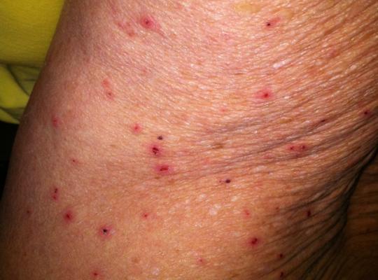 allergie au soleil peau noire